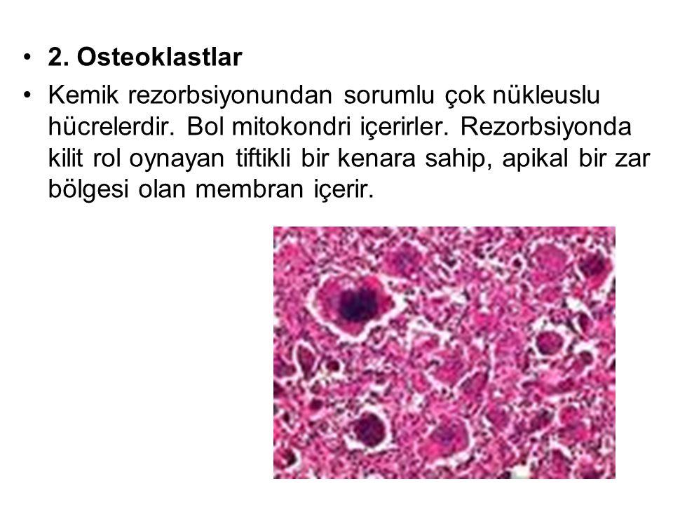 2. Osteoklastlar
