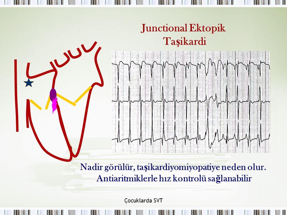 Junctional Ektopik Taşikardi