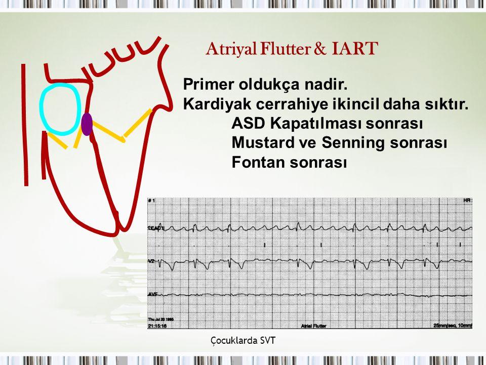 Atriyal Flutter & IART Primer oldukça nadir.