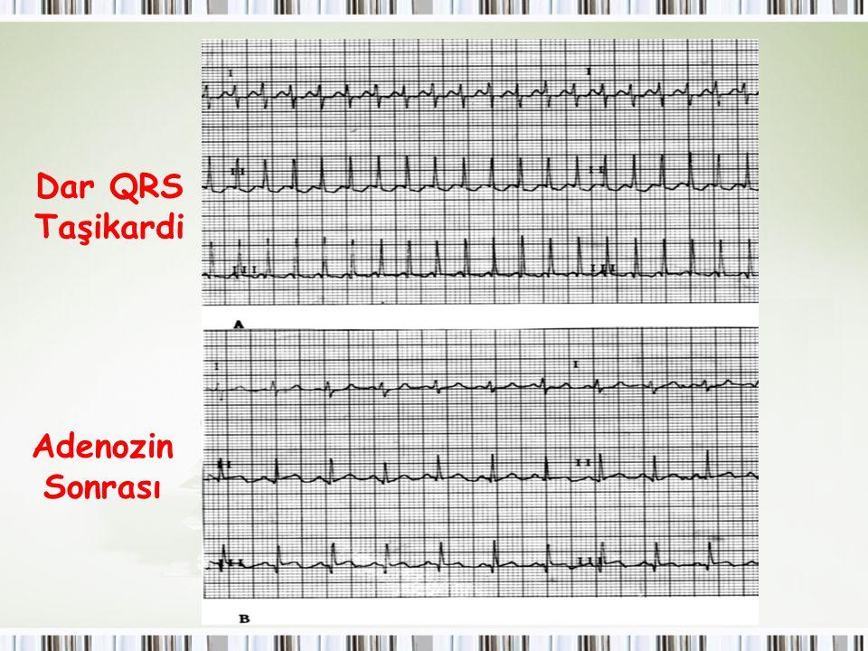 Dar QRS Taşikardi Adenozin Sonrası