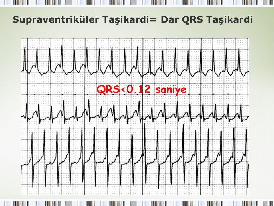QRS<0.12 saniye Supraventriküler Taşikardi= Dar QRS Taşikardi