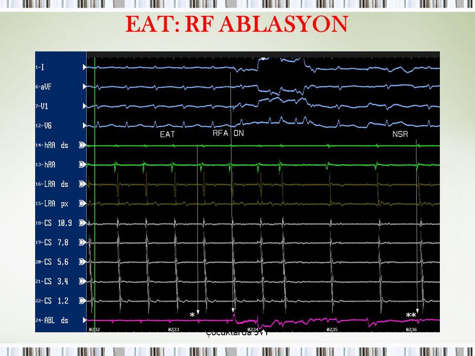EAT: RF ABLASYON Çocuklarda SVT