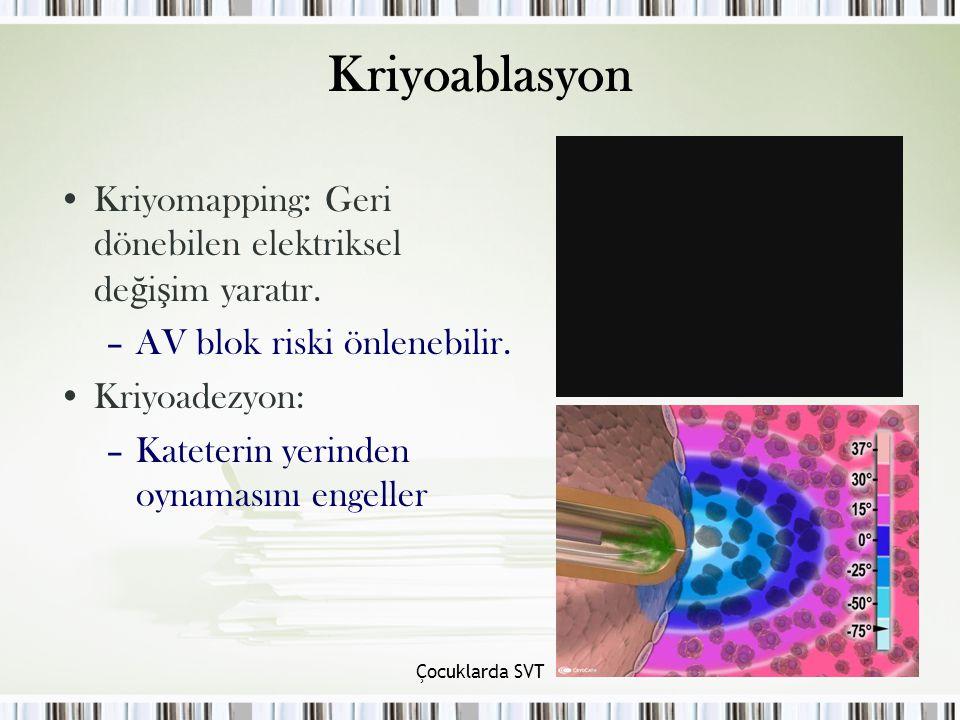 Kriyoablasyon Kriyomapping: Geri dönebilen elektriksel değişim yaratır. AV blok riski önlenebilir.