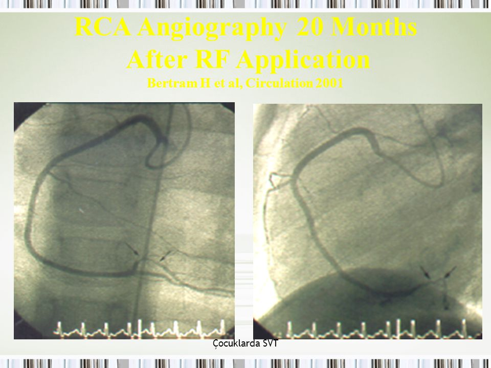RCA Angiography 20 Months After RF Application Bertram H et al, Circulation 2001