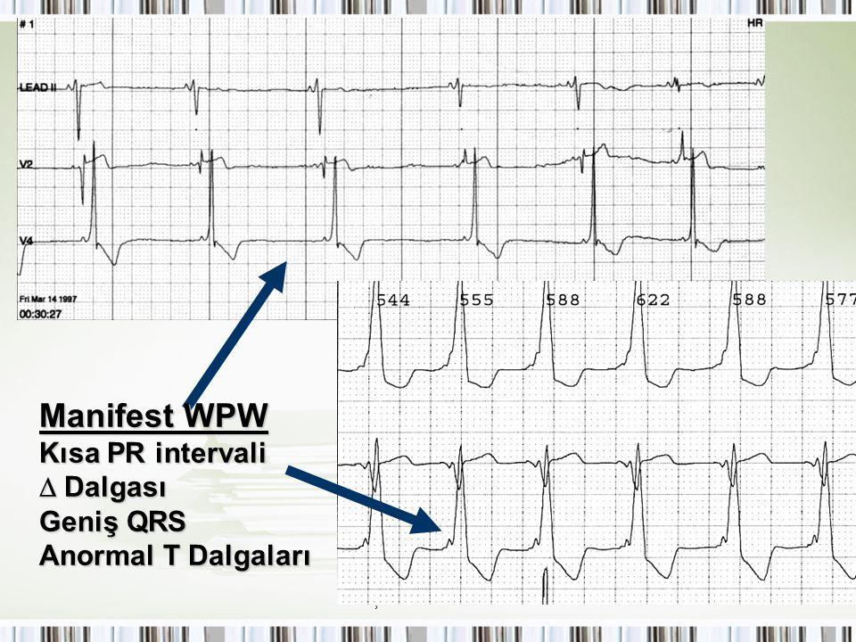 Manifest WPW Kısa PR intervali  Dalgası Geniş QRS Anormal T Dalgaları