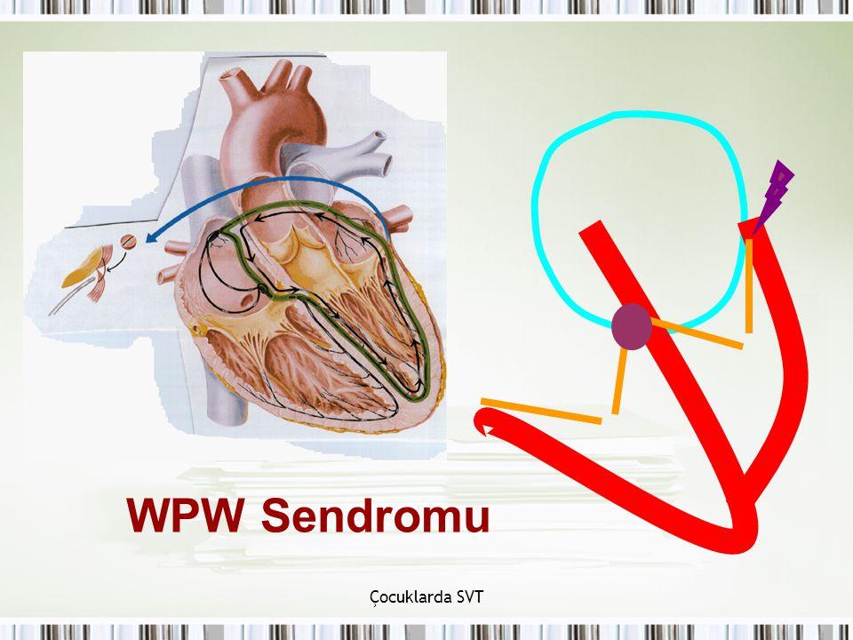 WPW Sendromu Çocuklarda SVT