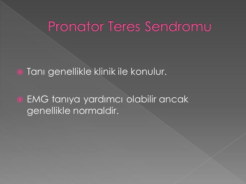 Pronator Teres Sendromu