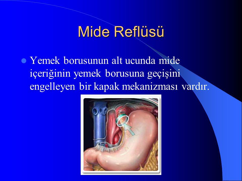 Mide Reflüsü Yemek borusunun alt ucunda mide içeriğinin yemek borusuna geçişini engelleyen bir kapak mekanizması vardır.