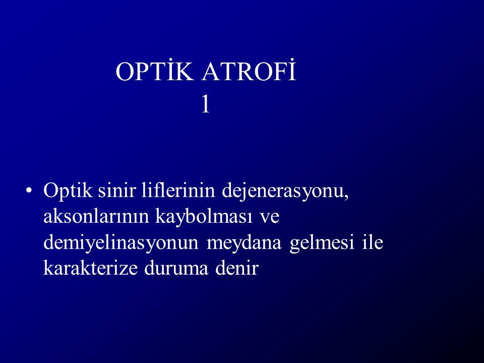 OPTİK ATROFİ 1 Optik sinir liflerinin dejenerasyonu, aksonlarının kaybolması ve demiyelinasyonun meydana gelmesi ile karakterize duruma denir.