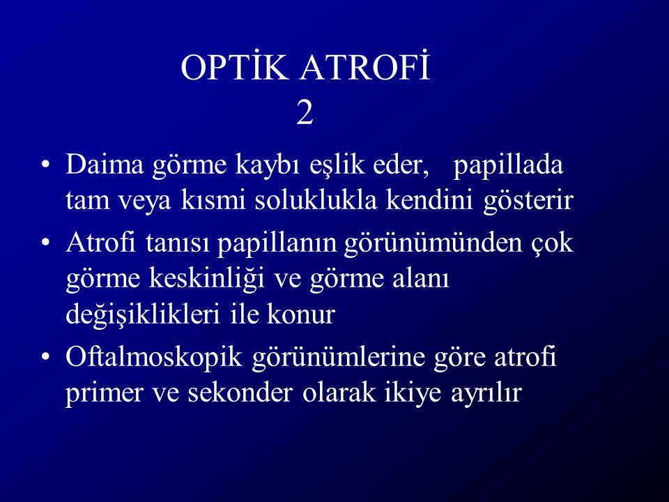 OPTİK ATROFİ 2 Daima görme kaybı eşlik eder, papillada tam veya kısmi soluklukla kendini gösterir.