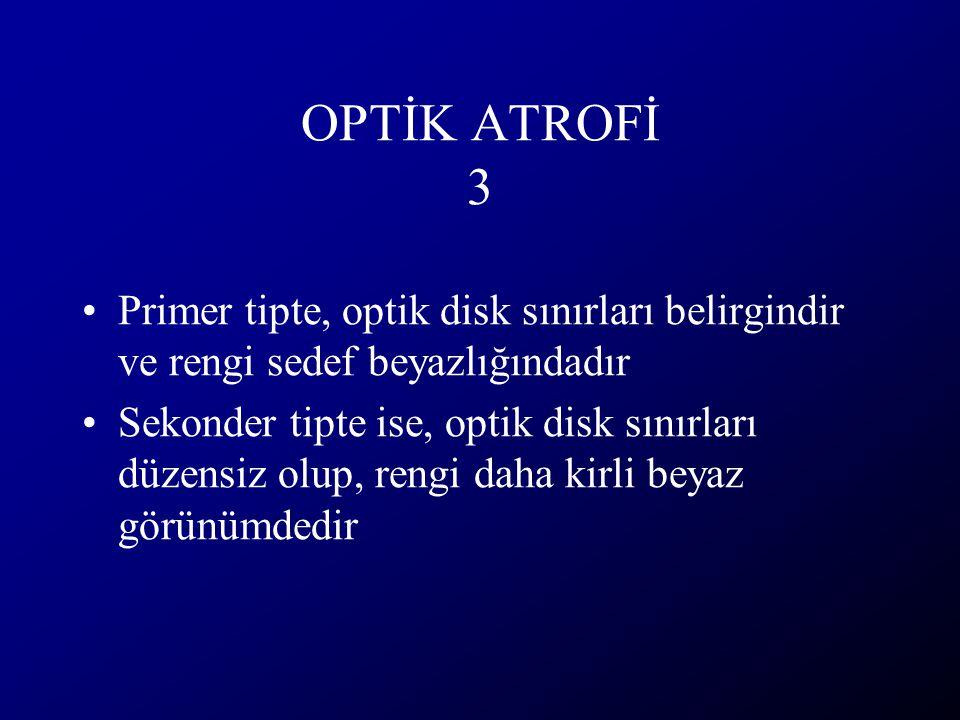 OPTİK ATROFİ 3 Primer tipte, optik disk sınırları belirgindir ve rengi sedef beyazlığındadır.