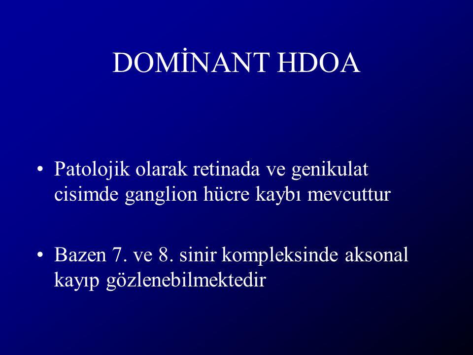 DOMİNANT HDOA Patolojik olarak retinada ve genikulat cisimde ganglion hücre kaybı mevcuttur.