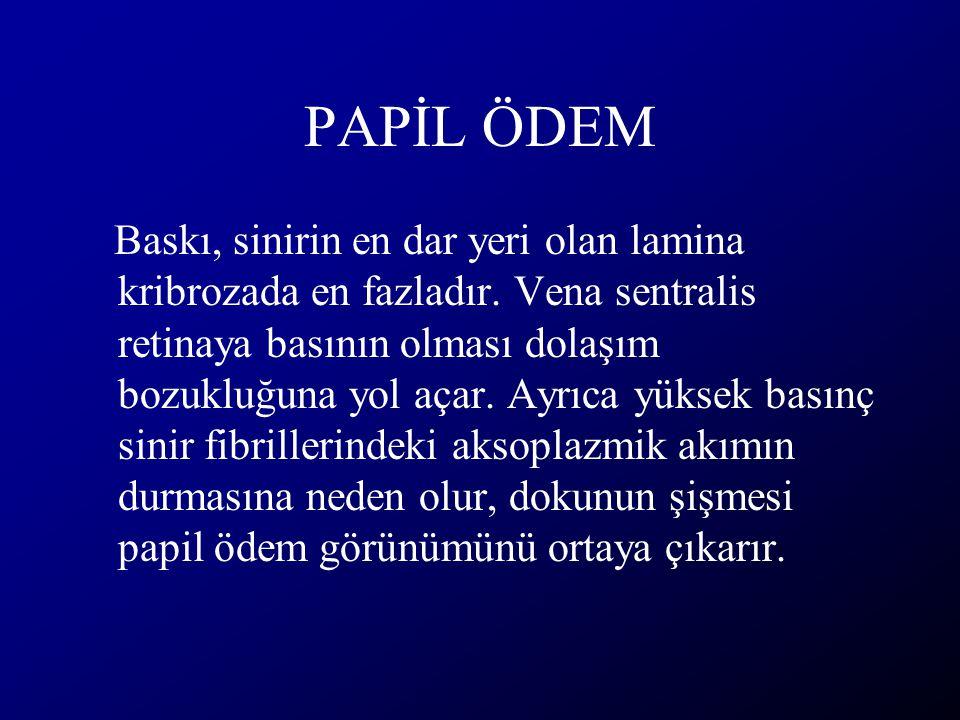 PAPİL ÖDEM