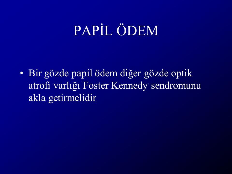 PAPİL ÖDEM Bir gözde papil ödem diğer gözde optik atrofi varlığı Foster Kennedy sendromunu akla getirmelidir.