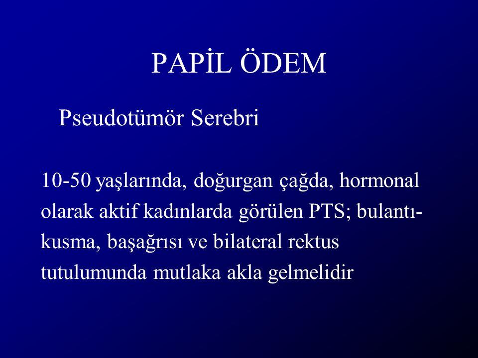 PAPİL ÖDEM Pseudotümör Serebri