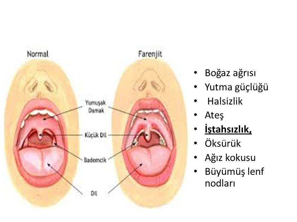 Boğaz ağrısı Yutma güçlüğü Halsizlik Ateş İştahsızlık, Öksürük Ağız kokusu Büyümüş lenf nodları