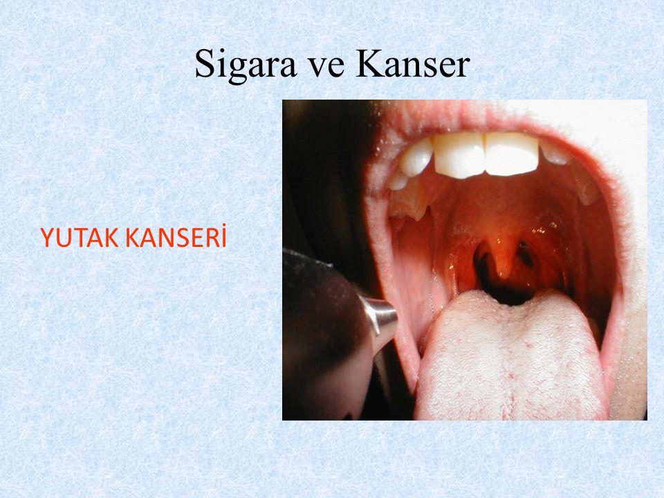 Sigara ve Kanser YUTAK KANSERİ