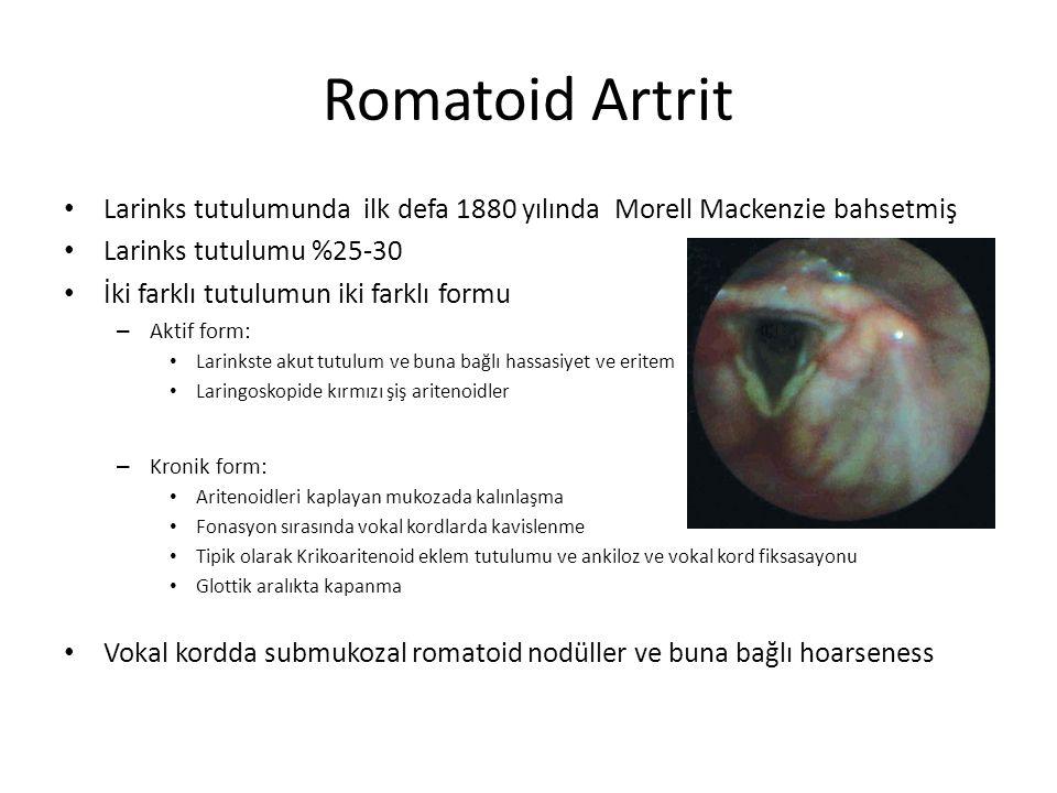 Romatoid Artrit Larinks tutulumunda ilk defa 1880 yılında Morell Mackenzie bahsetmiş. Larinks tutulumu %25-30.