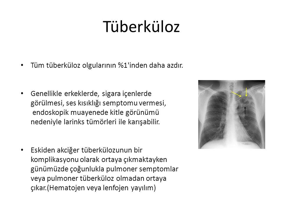 Tüberküloz Tüm tüberküloz olgularının %1 inden daha azdır.
