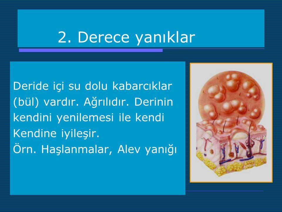 2. Derece yanıklar Deride içi su dolu kabarcıklar