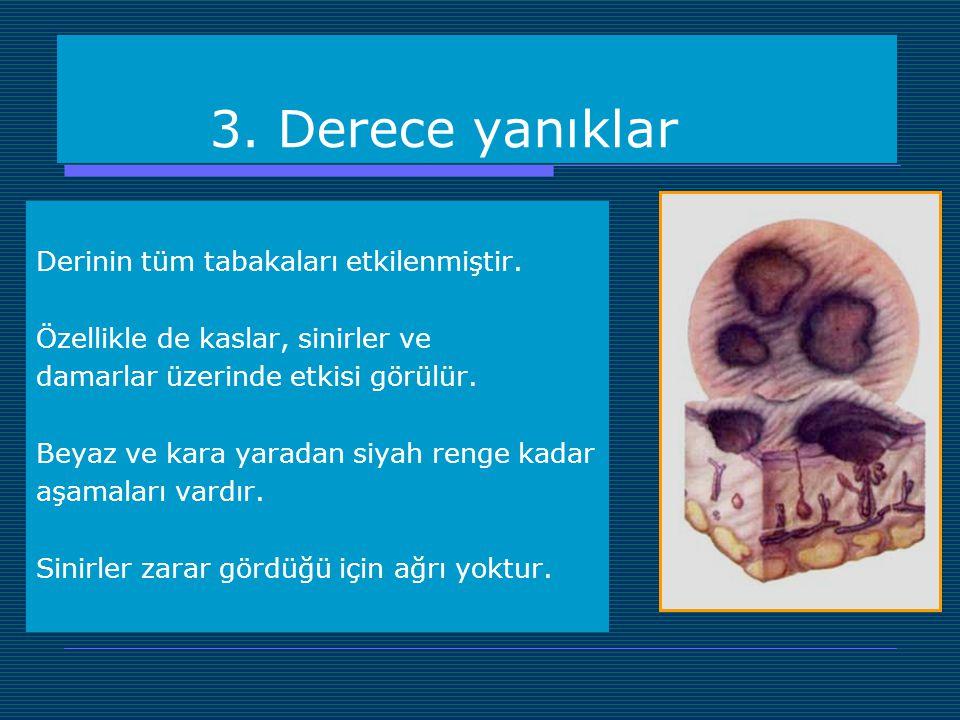 3. Derece yanıklar Derinin tüm tabakaları etkilenmiştir.