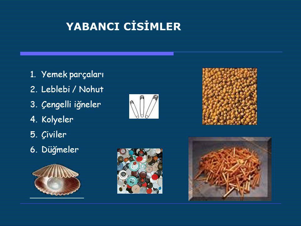 YABANCI CİSİMLER Yemek parçaları Leblebi / Nohut Çengelli iğneler