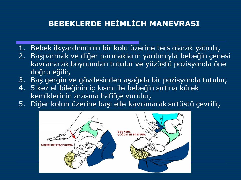 BEBEKLERDE HEİMLİCH MANEVRASI