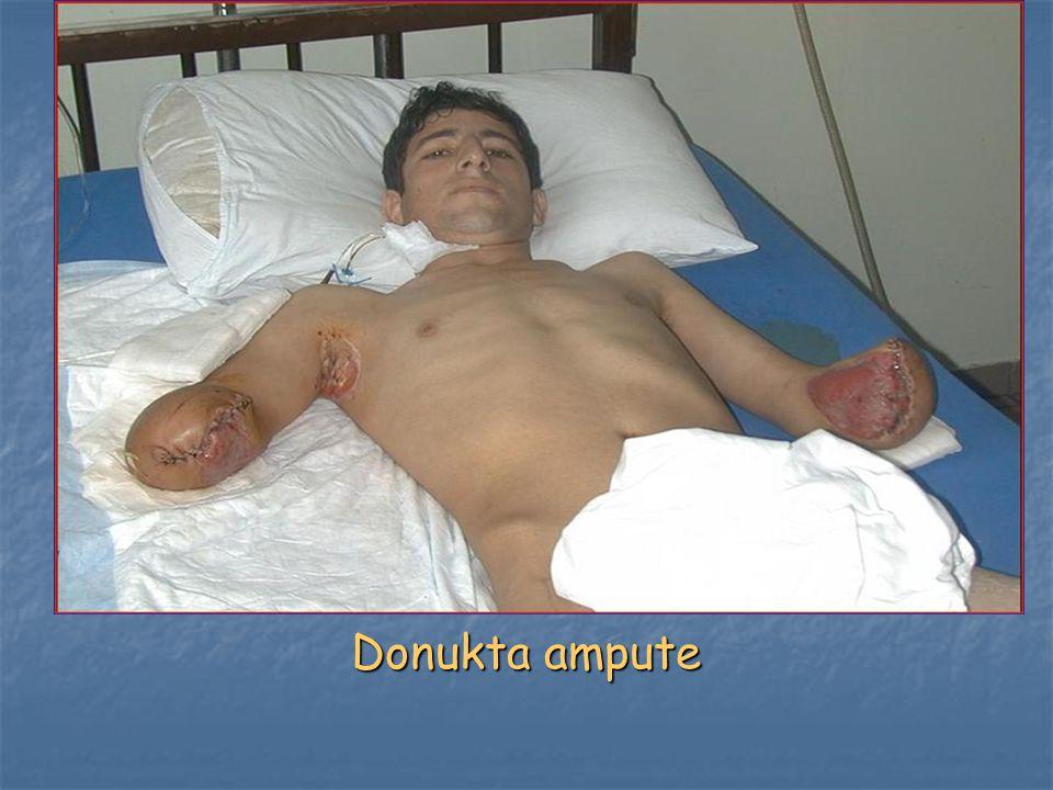 Donukta ampute