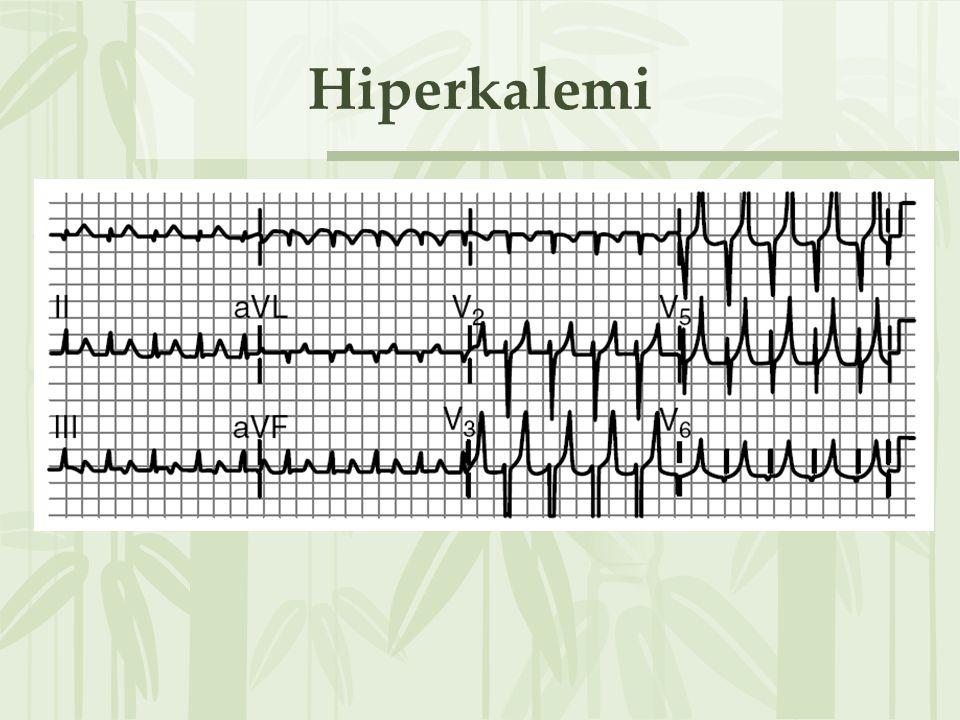 Hiperkalemi