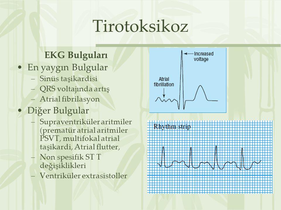 Tirotoksikoz EKG Bulguları En yaygın Bulgular Diğer Bulgular