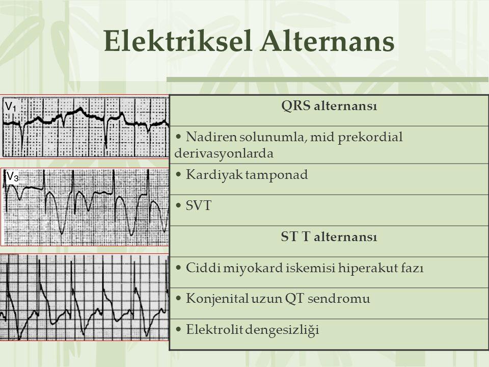 Elektriksel Alternans