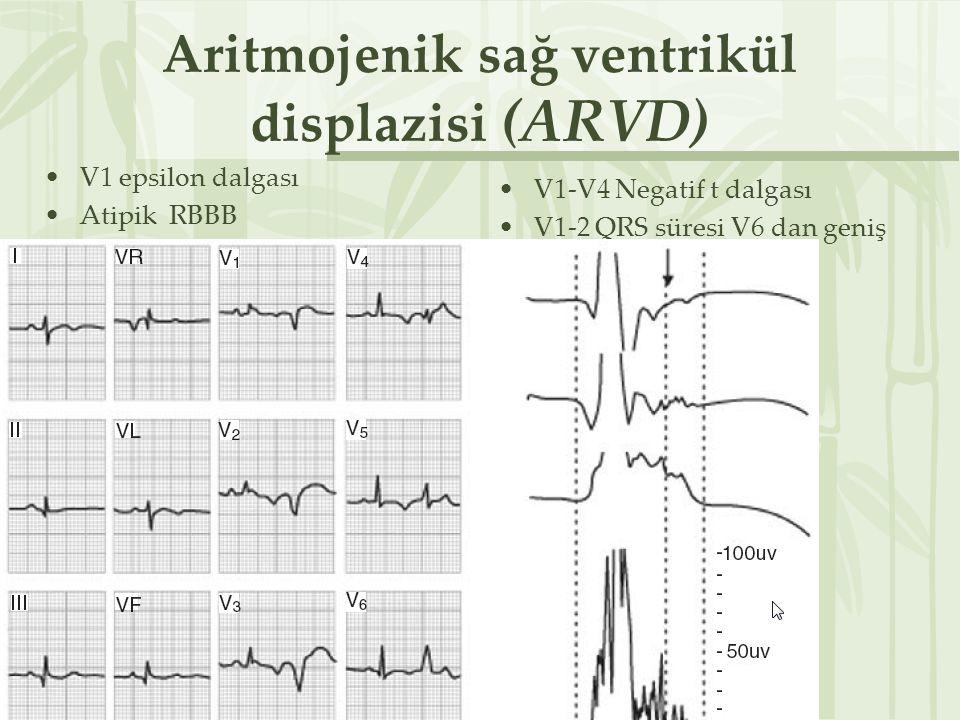 Aritmojenik sağ ventrikül displazisi (ARVD)