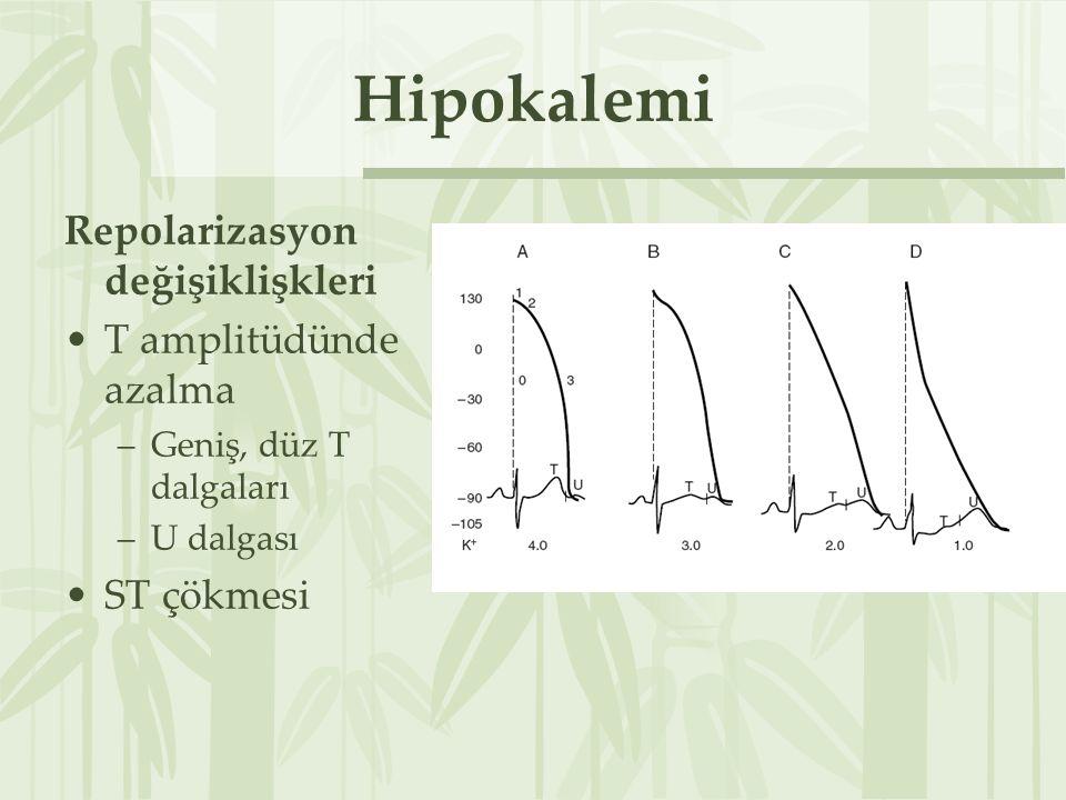 Hipokalemi Repolarizasyon değişiklişkleri T amplitüdünde azalma