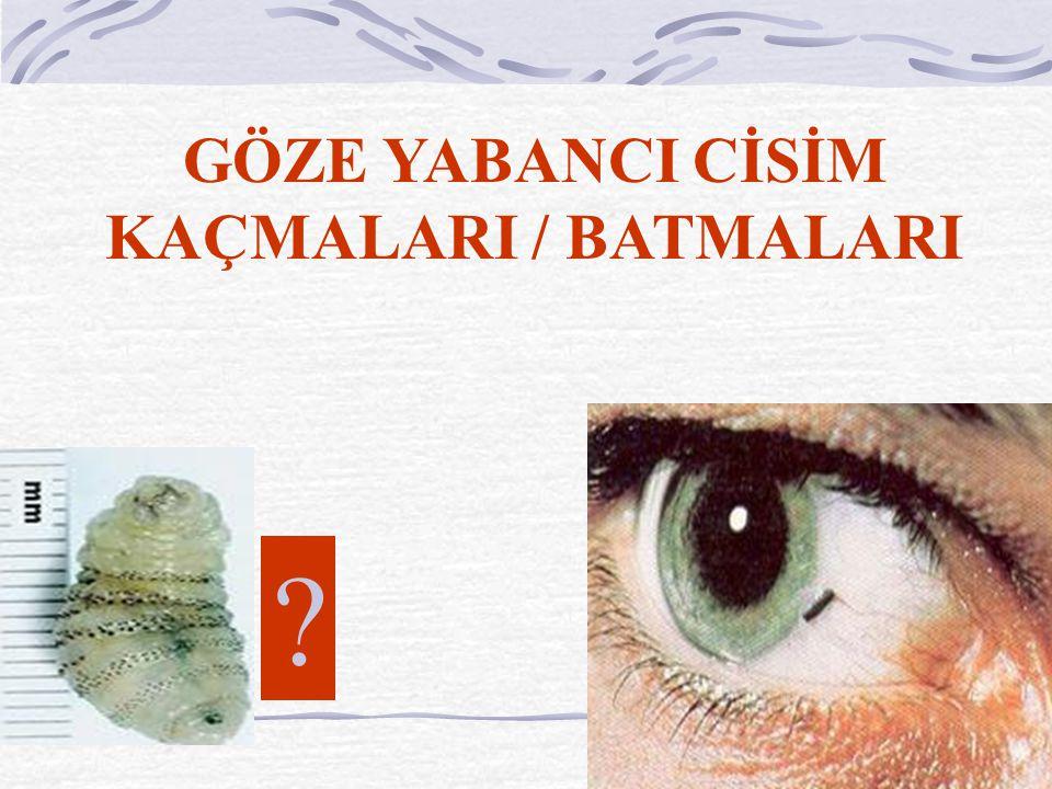 GÖZE YABANCI CİSİM KAÇMALARI / BATMALARI