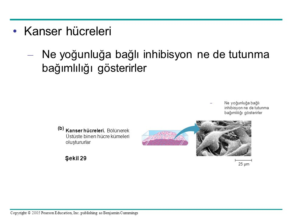 Kanser hücreleri Ne yoğunluğa bağlı inhibisyon ne de tutunma bağımlılığı gösterirler. 25 µm.