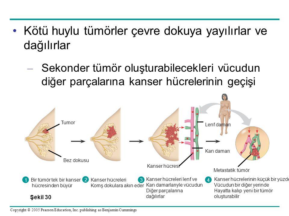 Kötü huylu tümörler çevre dokuya yayılırlar ve dağılırlar