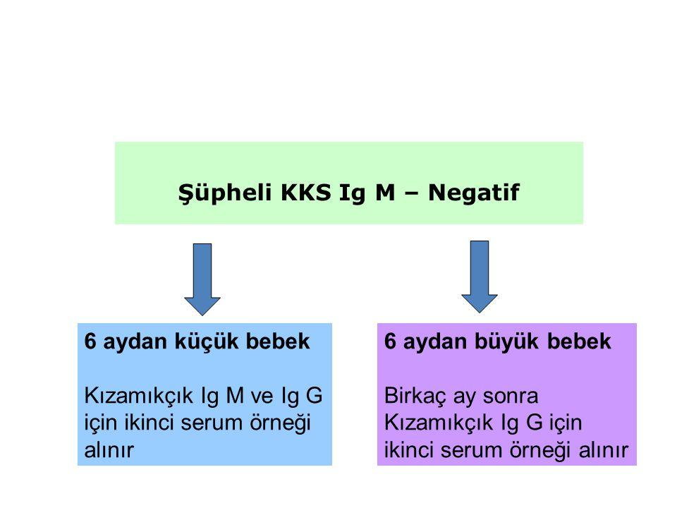 Şüpheli KKS Ig M – Negatif