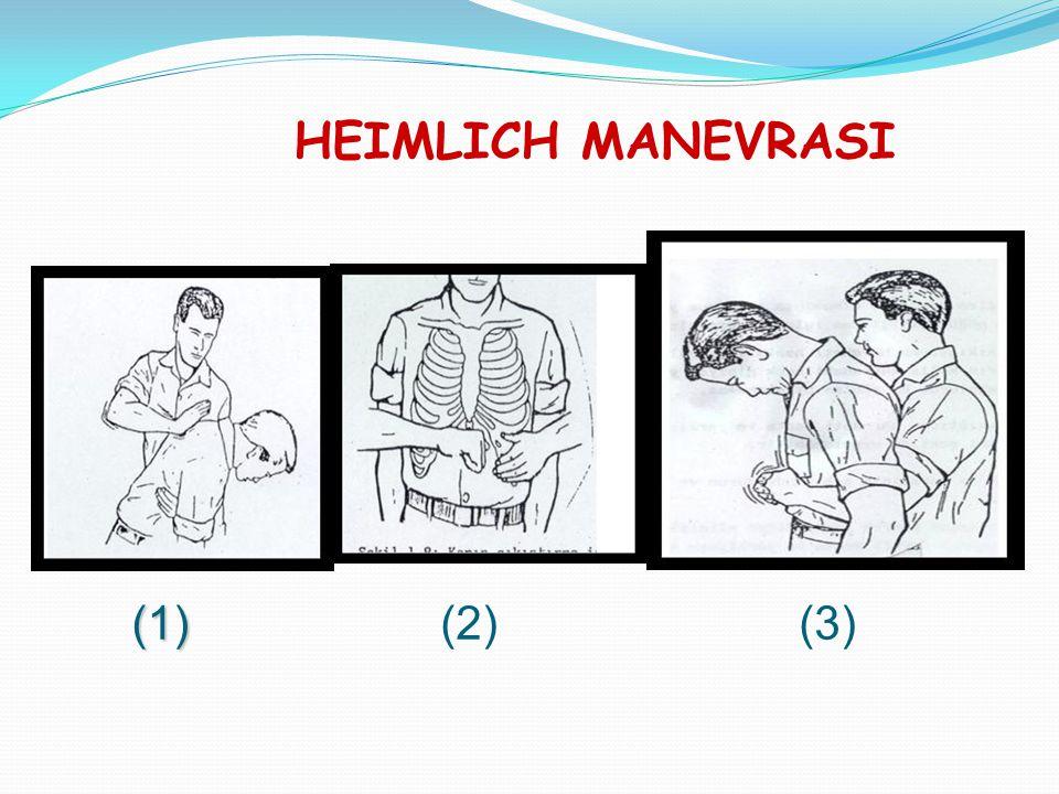HEIMLICH MANEVRASI (1) (2) (3)