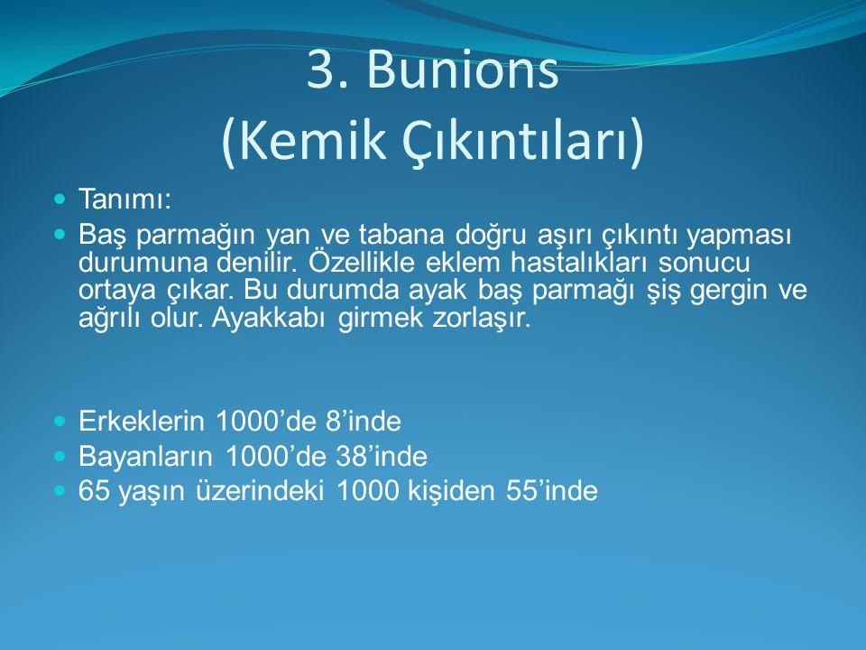 3. Bunions (Kemik Çıkıntıları)