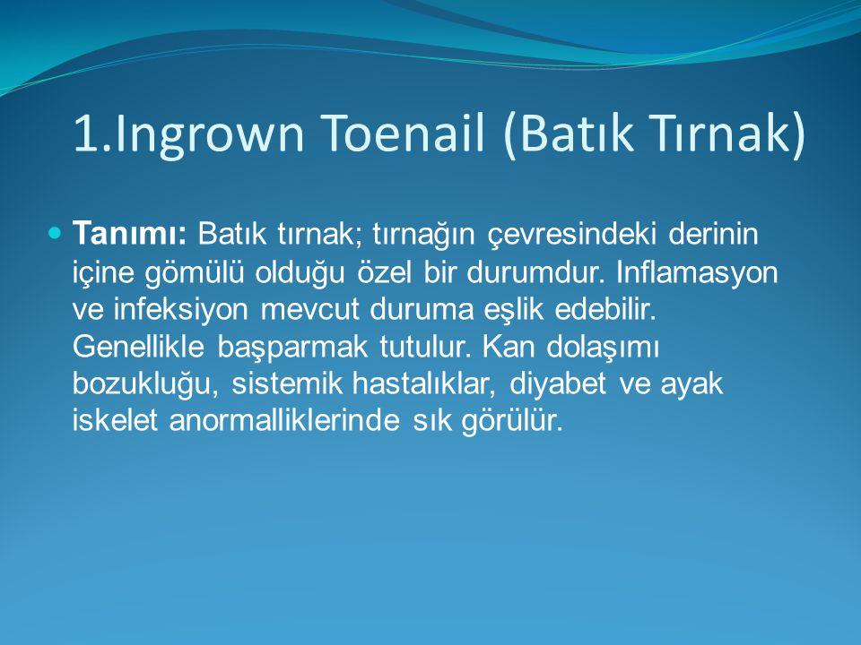 1.Ingrown Toenail (Batık Tırnak)