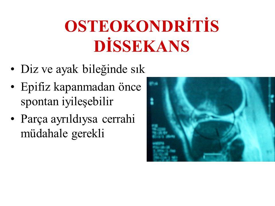 OSTEOKONDRİTİS DİSSEKANS