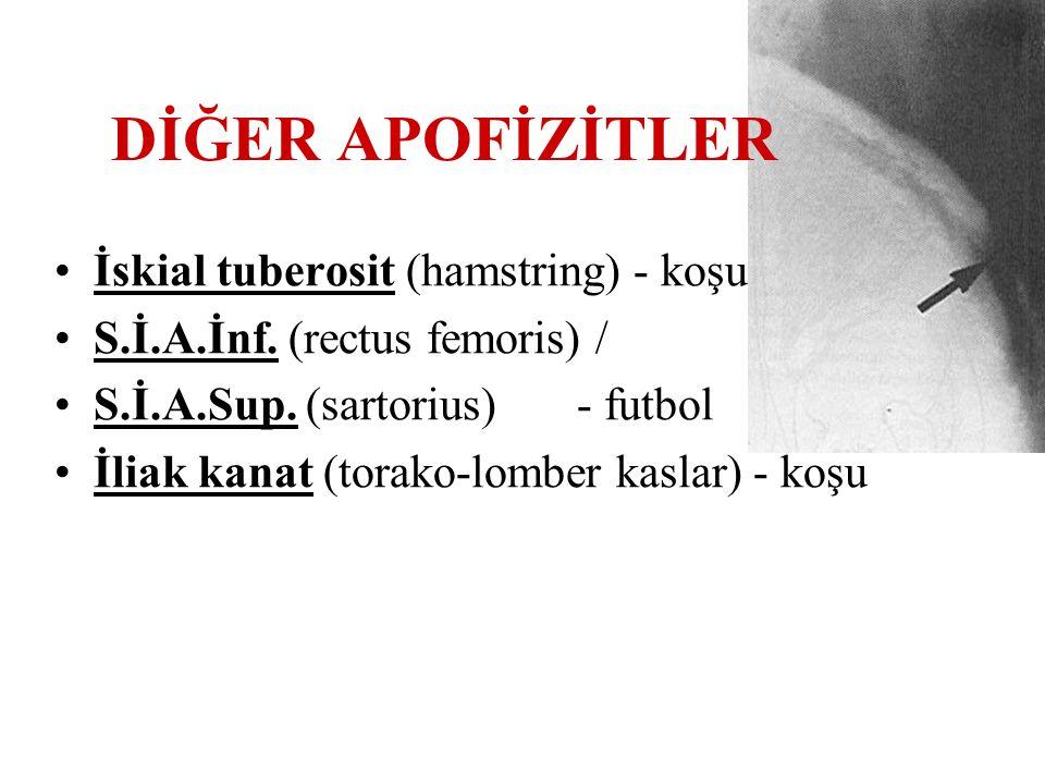 DİĞER APOFİZİTLER İskial tuberosit (hamstring) - koşu