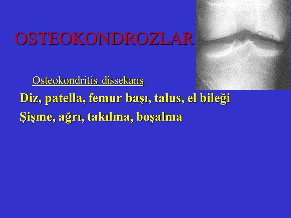 OSTEOKONDROZLAR Diz, patella, femur başı, talus, el bileği