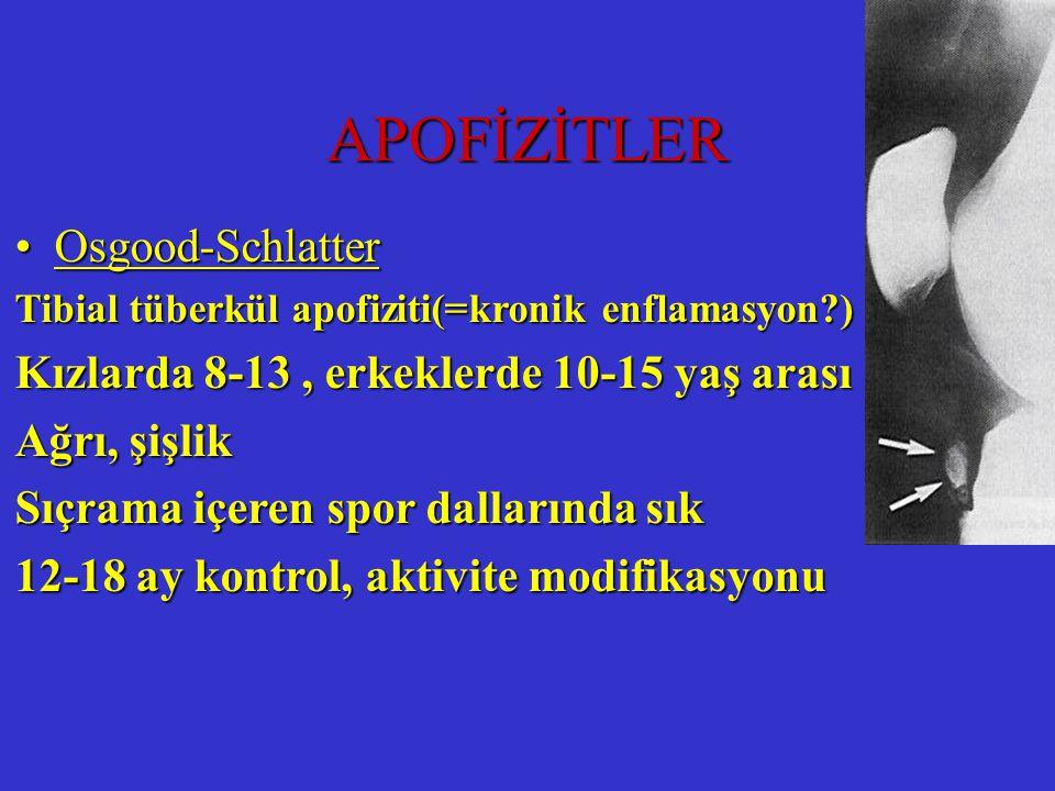 APOFİZİTLER Osgood-Schlatter