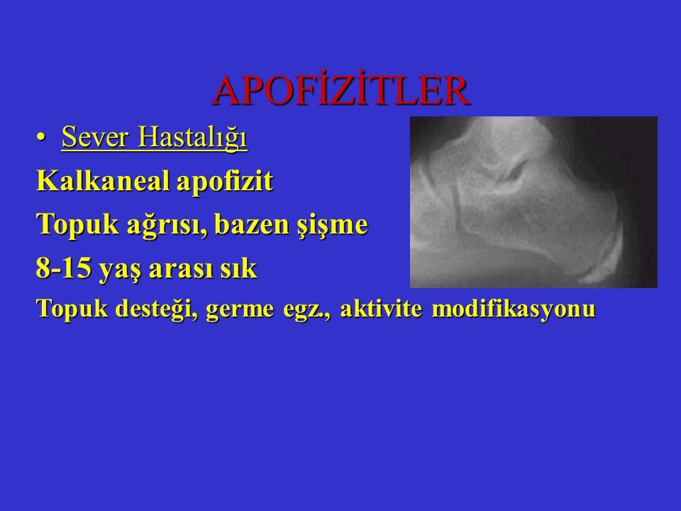 APOFİZİTLER Sever Hastalığı Kalkaneal apofizit