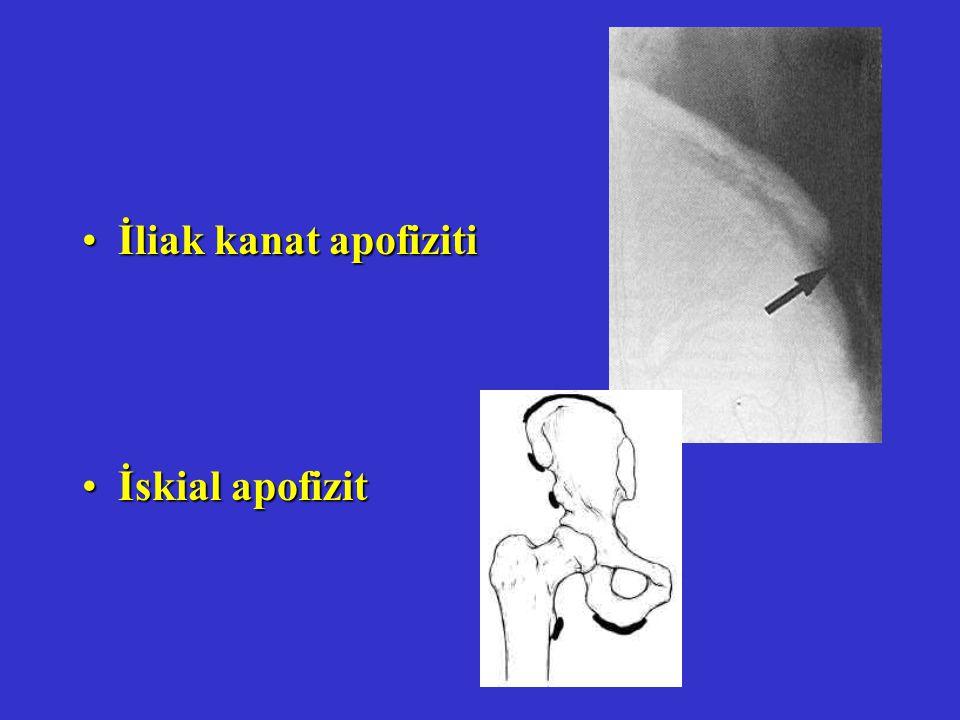 İliak kanat apofiziti İskial apofizit