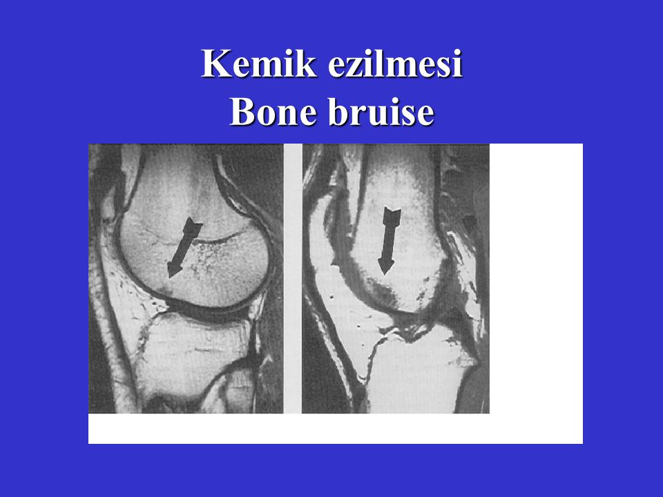 Kemik ezilmesi Bone bruise