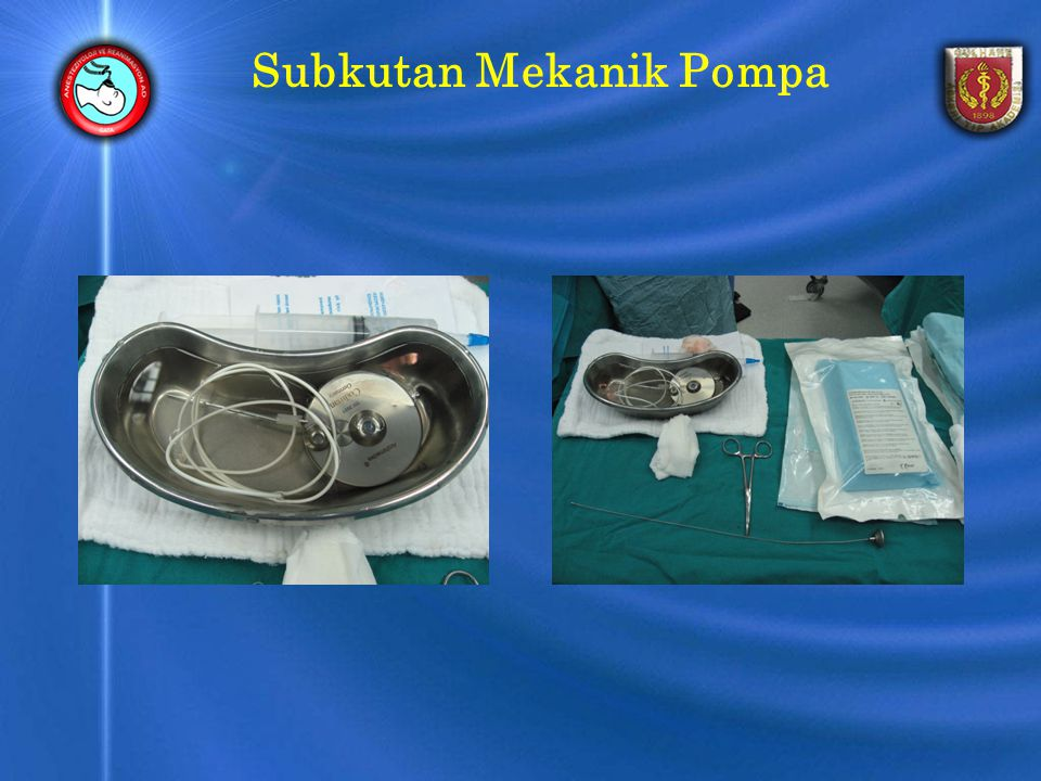 Subkutan Mekanik Pompa