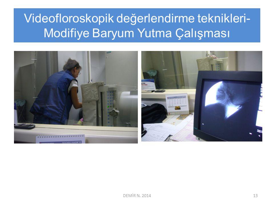 Videofloroskopik değerlendirme teknikleri- Modifiye Baryum Yutma Çalışması