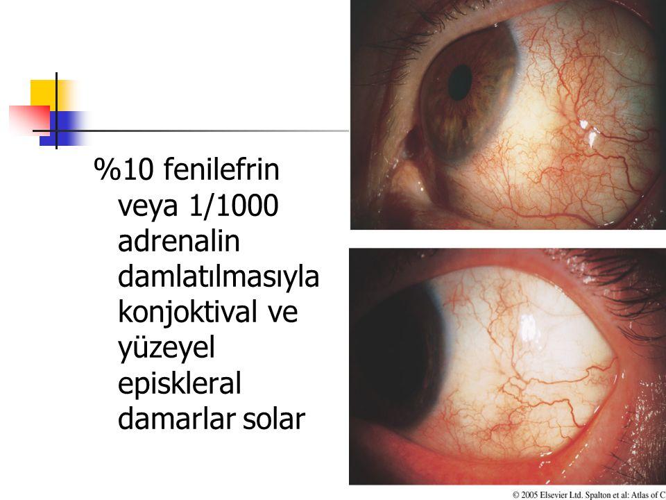 %10 fenilefrin veya 1/1000 adrenalin damlatılmasıyla konjoktival ve yüzeyel episkleral damarlar solar